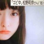エビ中・松野莉奈さん18歳で急死。なぜ?どんな子?私立恵比寿中学メンバーでモモクロ妹分。