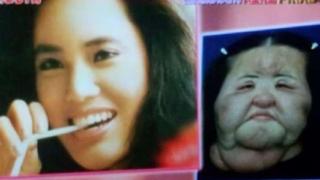 【訃報】扇風機おばさん死因は?整形副作用で話題の韓国人ハン・ヘギョン氏が死亡